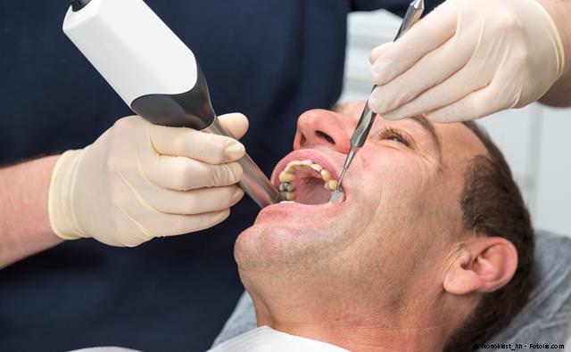 Digitale Aufnahme der Zähne statt Abformung