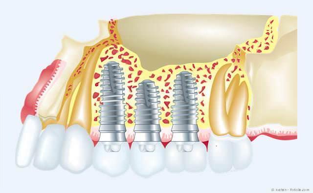 Implantate ersetzen fehlende Zähne.