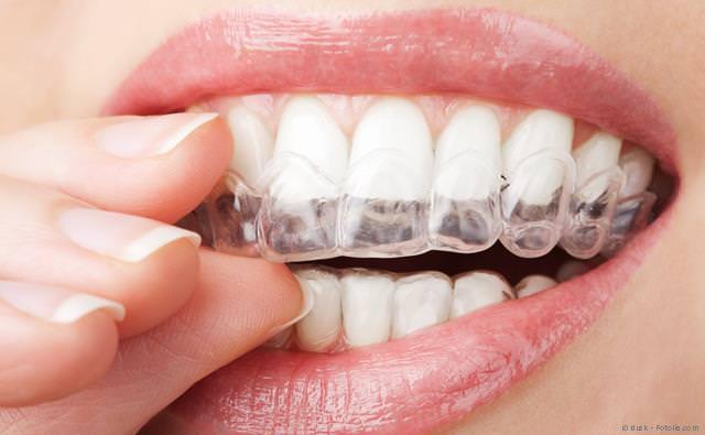 Transparente Folien statt Zahnspangen