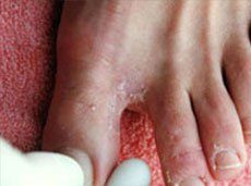 Athlete's foot infection