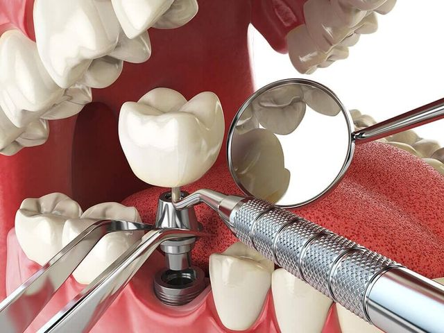 Dental Implants-Gaithersburg, MD - Dr  Gerard Boquel, DDS
