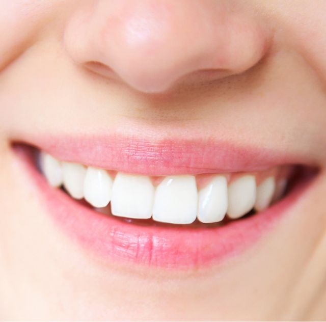 A perfect healthy smile