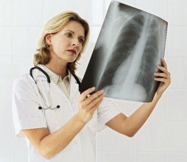prestazioni, radiologia, radiografia
