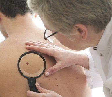 esami dermatologici