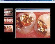 Family Dentistry Excelsior, MN