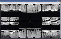 Cosmetic Dentistry Minnetonka, MN