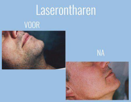 prijs laserontharing