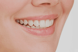 Mouth of a lady with white teeth