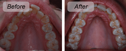 Before and after shots demonstrating the INman aligner