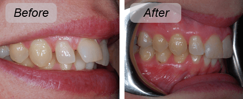 Before and after shots promoting oral hygiene in Thorndon
