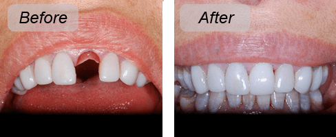 Implants put in at our Thorndon dental practice