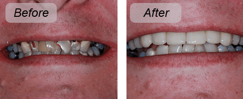 Implants work done by Dr Parm Gill