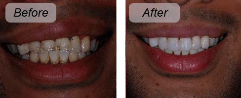 Before and after photo of veneer work