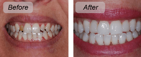 Before and after photo of a woman with veneers