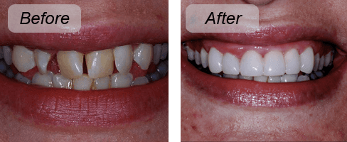 Before and after photo of veneers