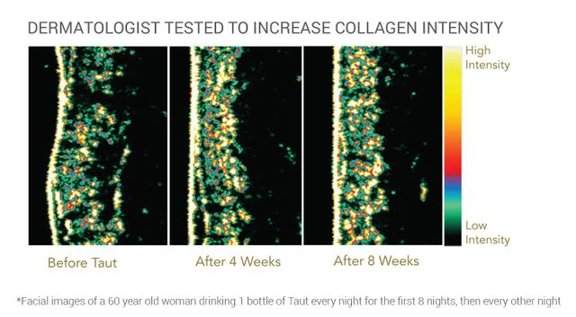 Taut Collagen Drink - Utra Sound Image