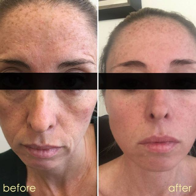 Before & After Drinking Taut Collagen | TautUSA