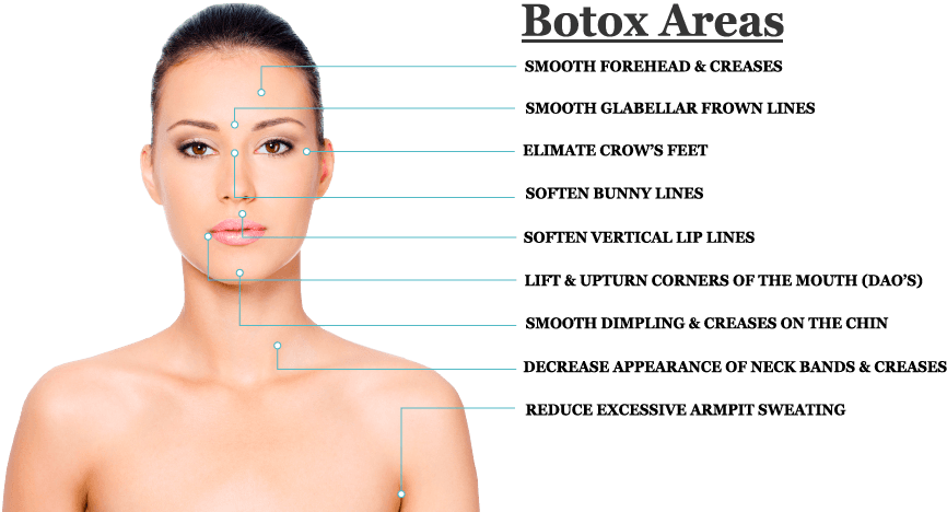 Botox Lip Diagram | Wiring Diagram