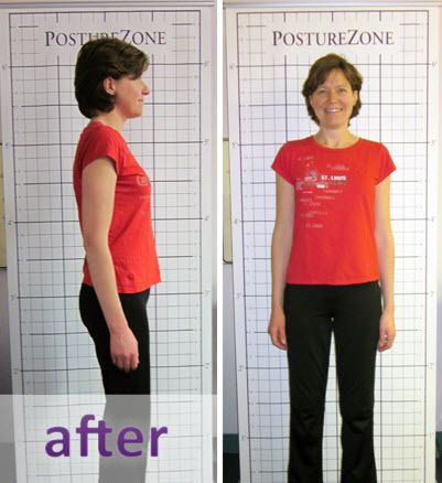 After Posture Program, InMotion Health Center in St. Louis MO