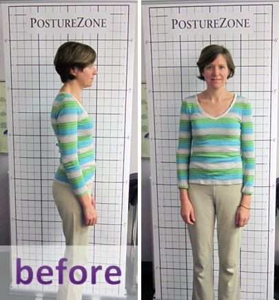 Before Posture Program, InMotion Health Center in St. Louis MO