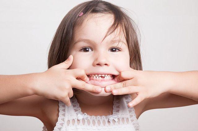 Il bambino ha lasciato cadere il primo dente del latte