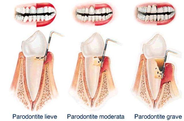 cura gengive, cura osso alveolare, cura legamento parodontale