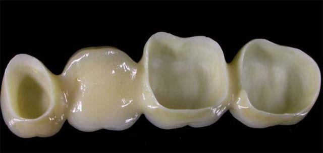 ponti dentali, corone dentali, intarsi dentali