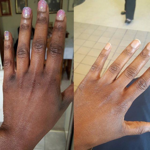 Skin Lightening, Skin Bleaching, Dark Spots, Hyperpigmentation
