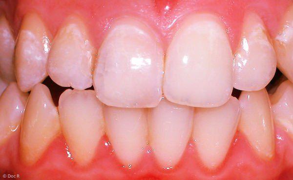 Derselbe Zahn nach der Aufhellung