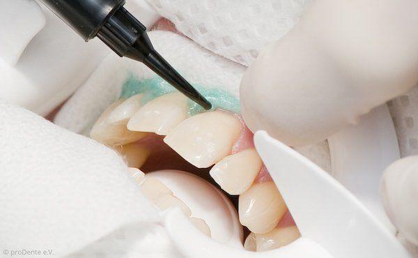 Power-Bleaching: Zahnfleischschutz