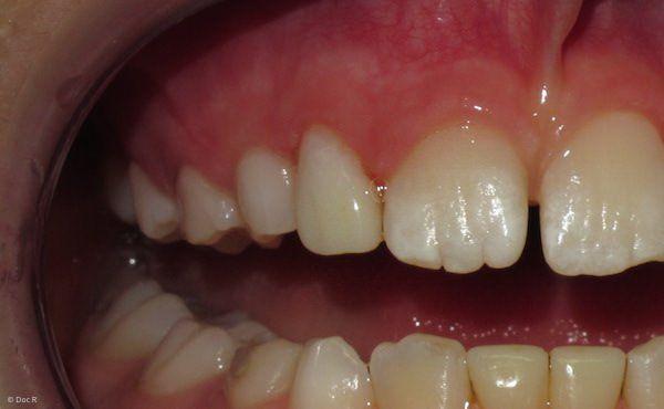 Teleskopprothese Zahn Abgebrochen