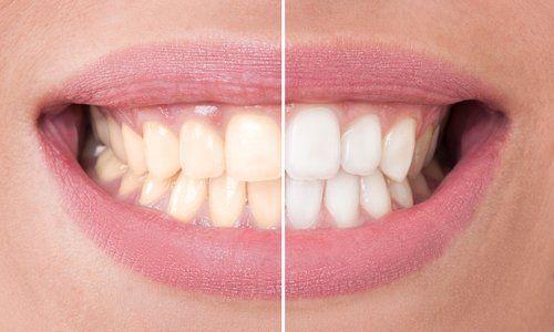 prima e dopo una igiene orale