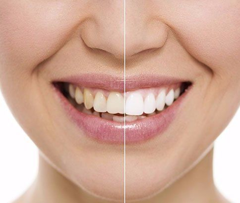 Cosmetic Dentistry Before & After, Burlington NC