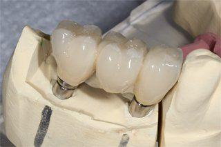 Dental Implants Fayetteville, NC