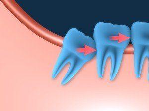 wisdom tooth causing misalignment