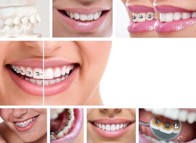 collage of orthodontics