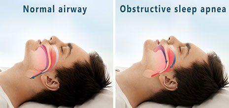 Illustrazione di vie normali e apnea ostruttiva del sonno