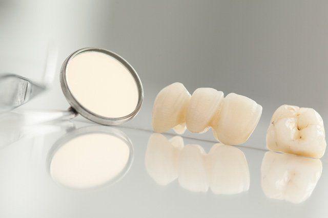 ceramic dental bridge and mirror on desk