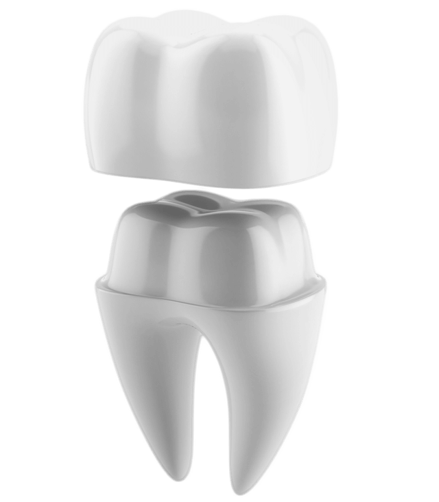 illustrated diagram of tooth getting a crown cap