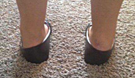 Children's foot problems