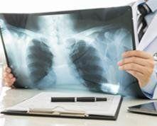 RADIOLOGIA DIGITALE, radiologia tradizionale, rx del torace, Altamura, radiografia del torace