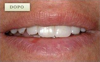 denti dopo un intervento