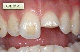 denti prima di una ricostruzione