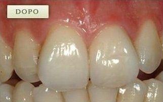 denti dopo  una ricostruzione