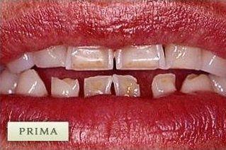dentatura consumata