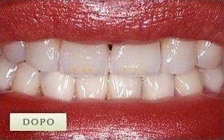 denti ricostruiti con smalto