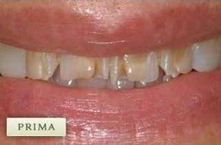 dei denti consumati