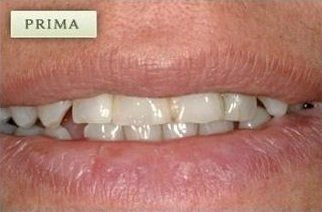 denti prima di un intervento