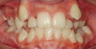dei denti storti