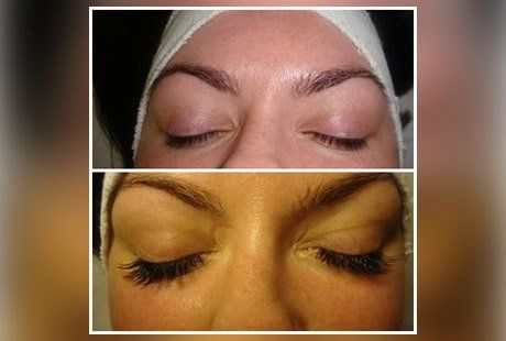 Eyelashes before and after treatment